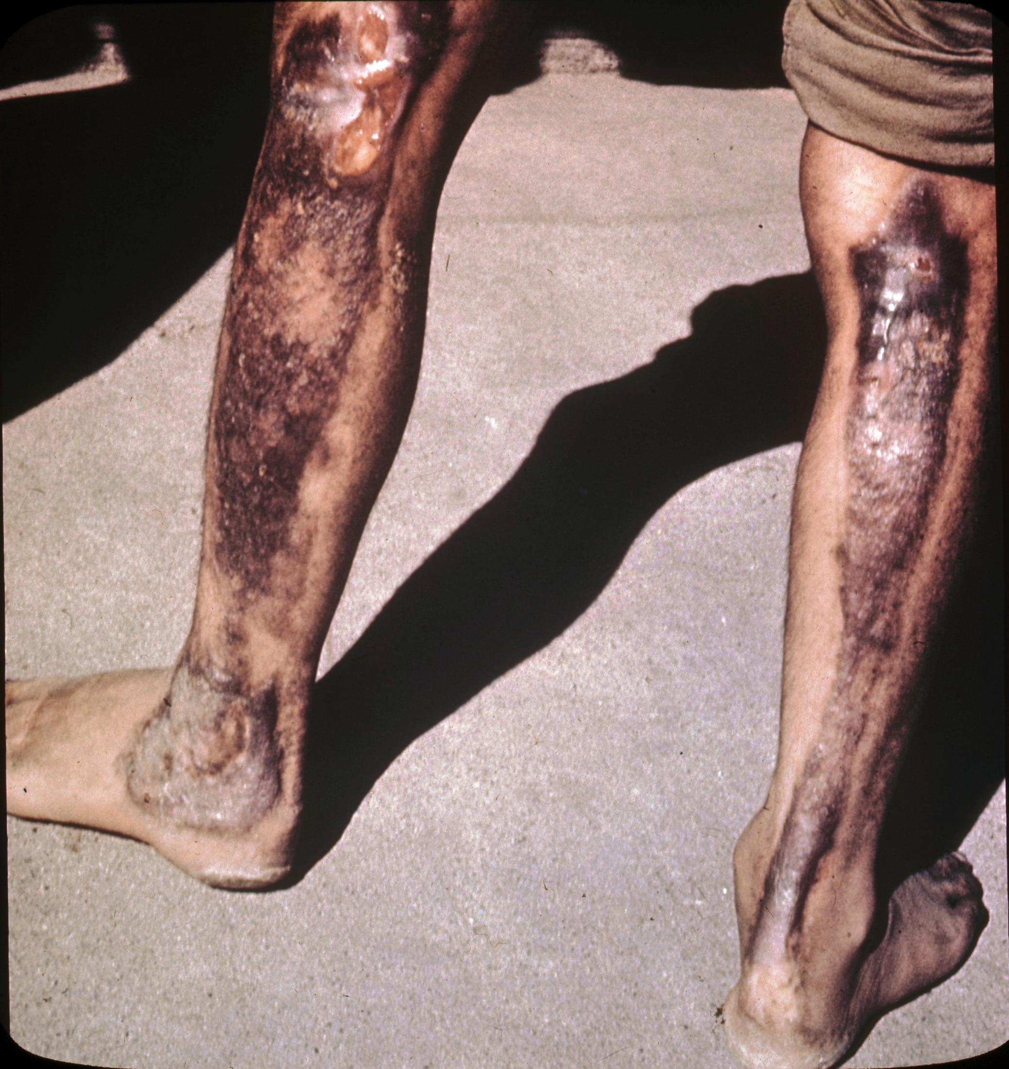 परमाणु बम से निकली गर्मी दूर खड़े लोगों को भी इस तरह झुलसा देती है. (फोटोःविकिमीडिया कॉमन्स)