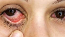 आंखों में चुभन, खुजली रहती है तो आपको हो सकती है ये तकलीफ