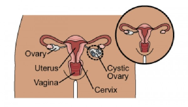 Ovary Removal 700