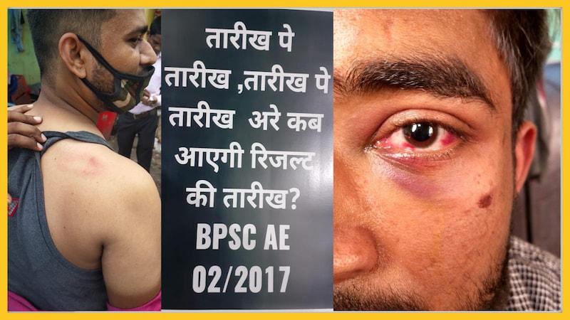 BPSC AE 2017: मेन्स का रिजल्ट मांग रहे छात्रों पर बरसीं लाठियां