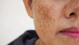 चेहरे पर होने वाली झाइयों से परेशान हो? डॉक्टरों की ये बातें पहली फुरसत में पढ़ लो