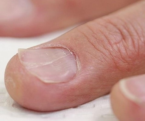 Spoon Nails