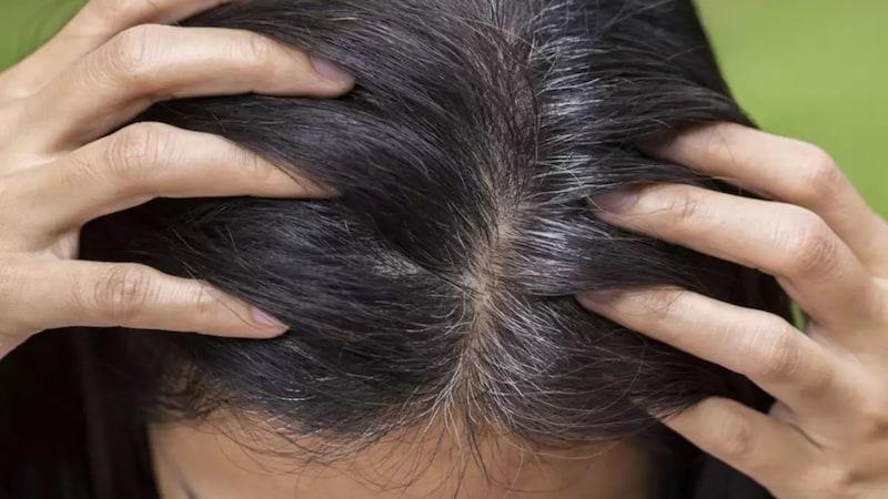 क्या समय से पहले सफ़ेद होने वाले बाल वापस काले हो सकते हैं?