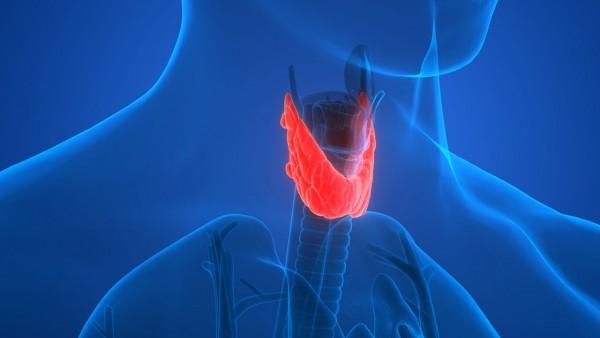 Thyroid Cancer 1