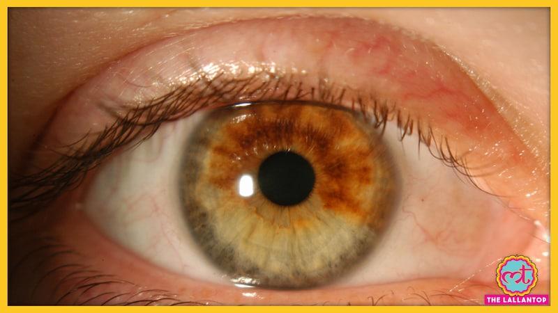 आंख में होने वाले कैंसर की ये बातें आपको ज़रूर मालूम होनी चाहिए