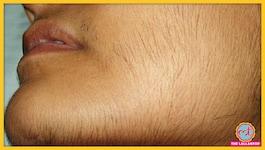 ये कौन सी बीमारी है जिसमें औरतों के चेहरे पर दाढ़ी-मूंछ निकल आती है?