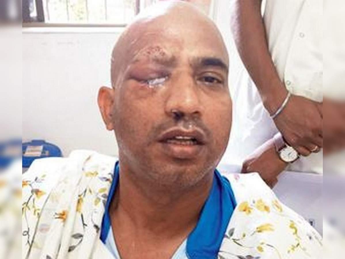 Jeetu Verma Eye Injury