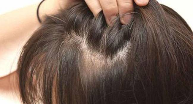 Hair loss can be a great trouble! Know about the causes and therapies